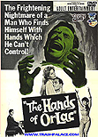 Hands of Orlac (1960) - Mel Ferrer and Christopher Lee